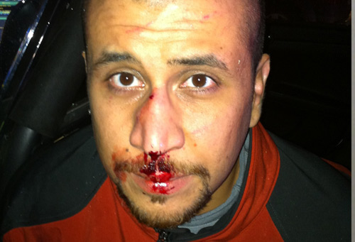 George Zimmerman on the night of the attack photo / gzlegalcasedotcom